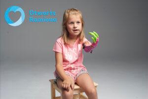 druk 3D, 3d prostetic, Fundacja Otwarte Ramiona